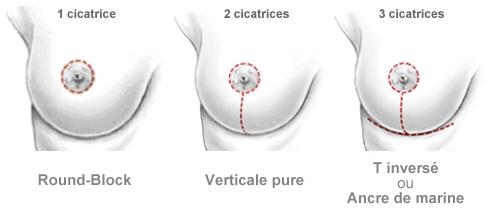 Schéma des types de cicatrices possibles dans le cas des oncoplasties